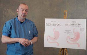 præsentation-gastric-sleeve