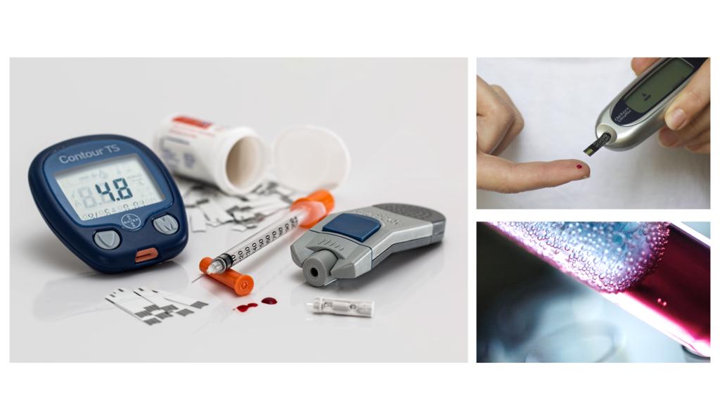 obesity-surgery-diabetes-type-2